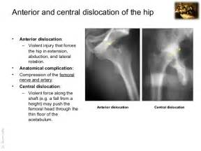 anatomy of hip joint picture 1