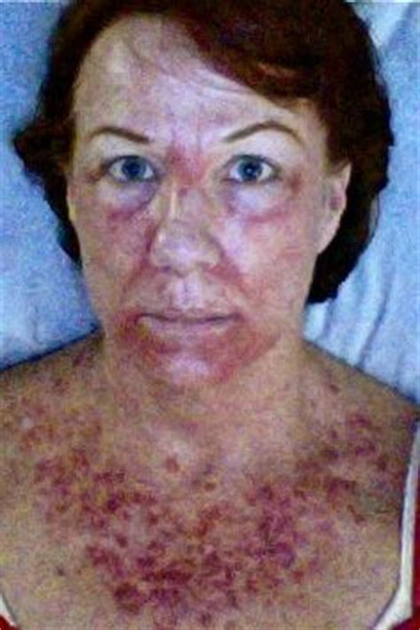 chemotherapy effects on skin picture 19
