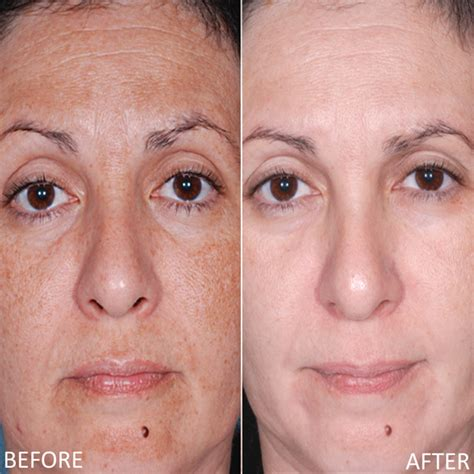 anti aging solution to melasma skin picture 8