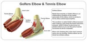elbow pain relief picture 5