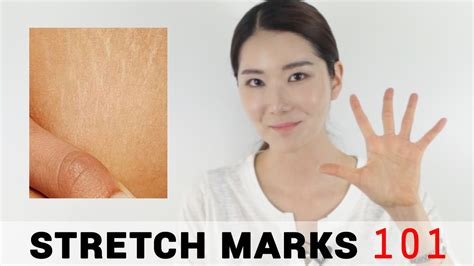 how to remove stretch marks picture 13