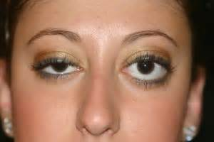 can herpes cause graves disease picture 13