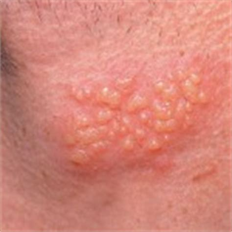 what does herpes look like. com picture 4