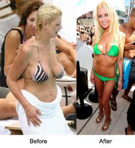 before after breast saggy augmentation pictures picture 1