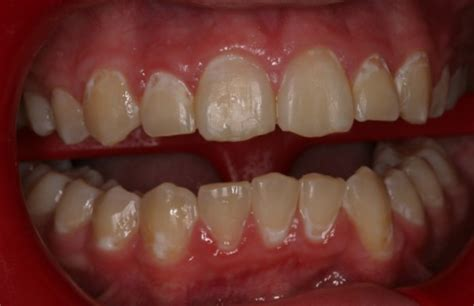 can weak spots in teeth be fixed picture 2