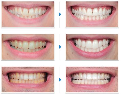 white teeth california picture 9