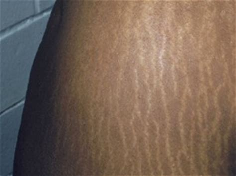 coolbeam stretch mark for dark skin picture 1