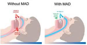 sleep apnea and heart picture 3