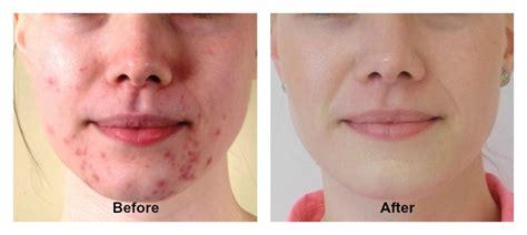 Make up acne treatment no aloe picture 4