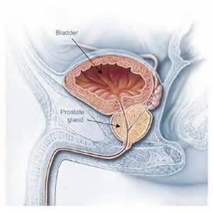 Prostate cancer and lupron picture 2