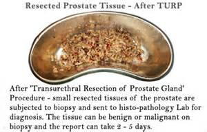bleeding prostate picture 6