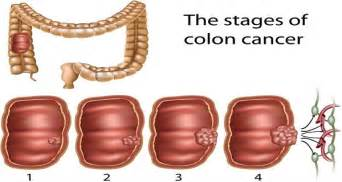 healthy monday colon cancer picture 2