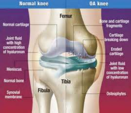 osteoarthritic knee joint pain picture 1