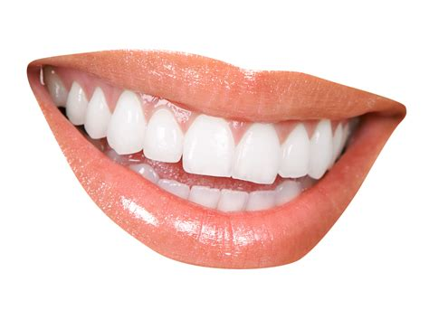 clear teeth picture 7