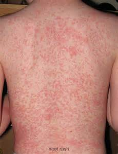 show me pictures of skin rashes picture 9