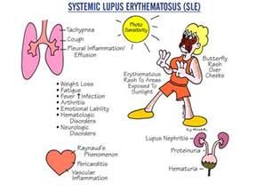 hyperparathyroidism medication picture 10