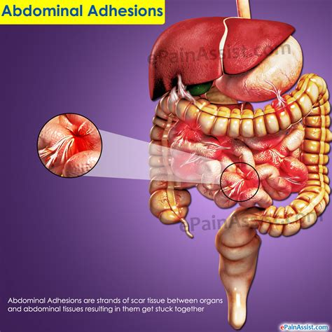 treatment for intestinal adhesions picture 1