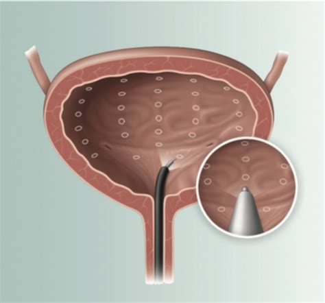 active bladder cure picture 13