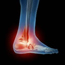ankle joint pain picture 14