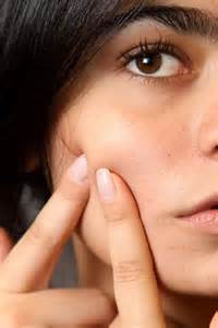 at what age does acne resolve picture 3
