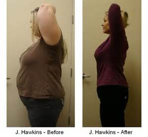 hcg and weight loss picture 1