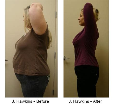weight loss with hcg shots and phentermine picture 6