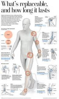 arthritis in every joint of the body picture 11