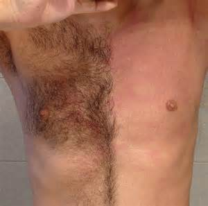 pubic hair is not in picture 14
