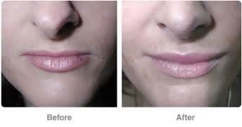 Lip enlargement picture 11