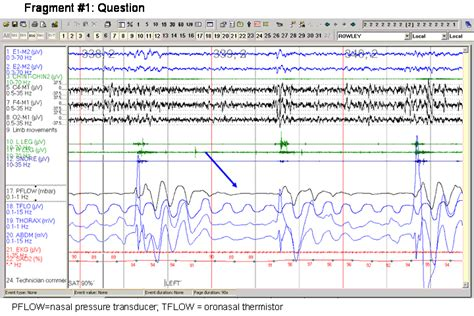 protocol for scoring hypopneas in polysomnography sleep study picture 4