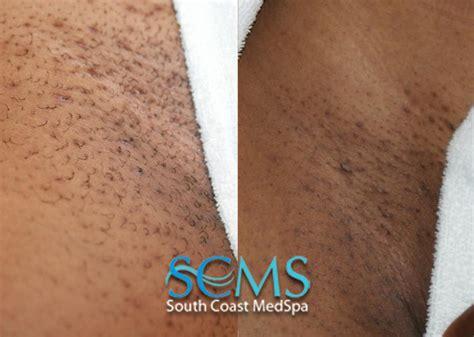 bikini hair removal picture 1