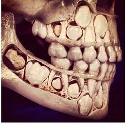 baby teeth losing picture 6
