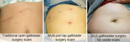 internal bleeding after gall bladder surgery picture 5