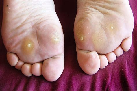 warts on ball of footfoot problems picture 7