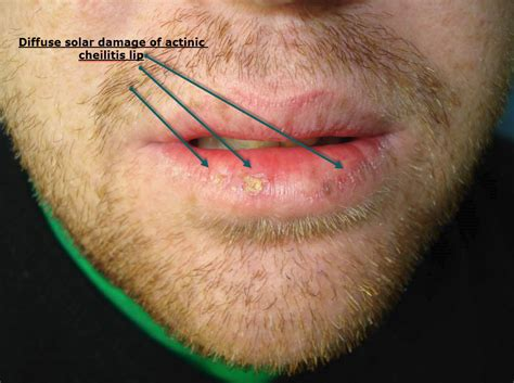 treatment for lip wart picture 3