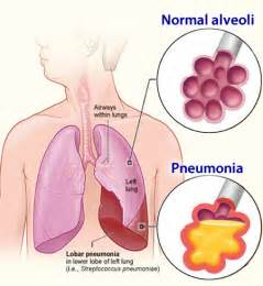 Bacterial pneumoniam picture 6