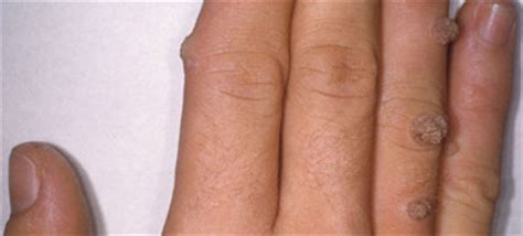 skin diseases causing white itchyless patches in the fingers and feet picture 1