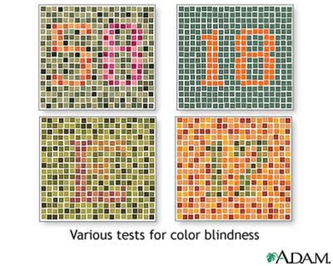 color blind treatment in philippines picture 13