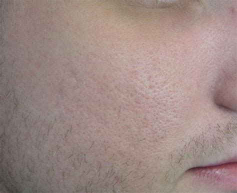 boesen laser skin enhancement picture 3