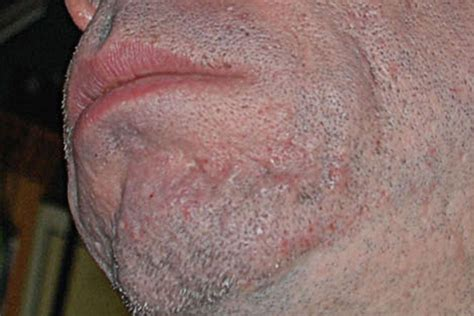 what causes acne scaring picture 9