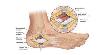 cure for muscle fasciae picture 17