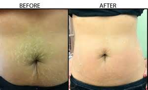 before and after burning stretch marks picture 1