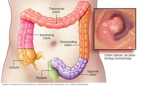 what is a colon picture 15
