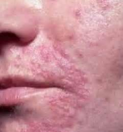 can yeast infections cause sores picture 15
