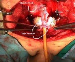 Prostate removal surgery picture 1