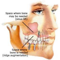 sinus infection and dental/oral pain picture 3