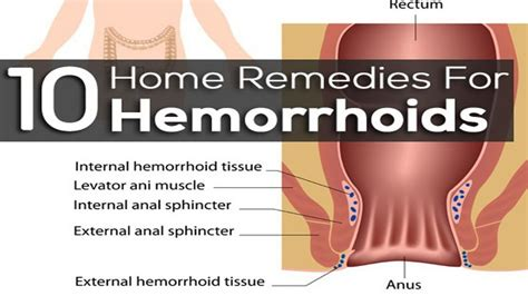 treatment of hemorrhoids picture 2