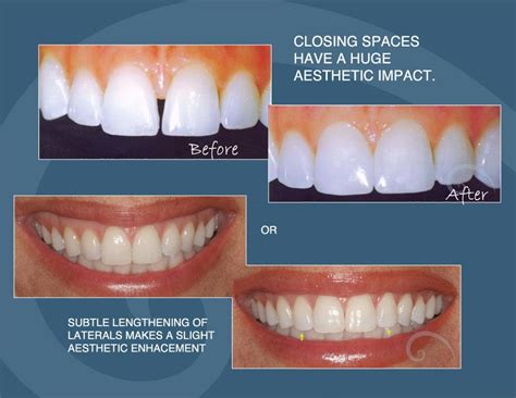 clear bonding for teeth picture 2