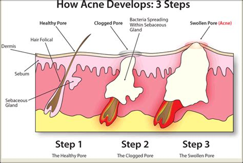 ano herbal ang pampatanggal ng acne scars picture 3
