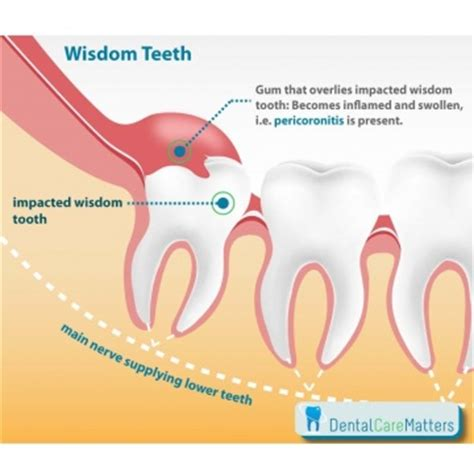 discount dental plans for wisdom teeth removal picture 7